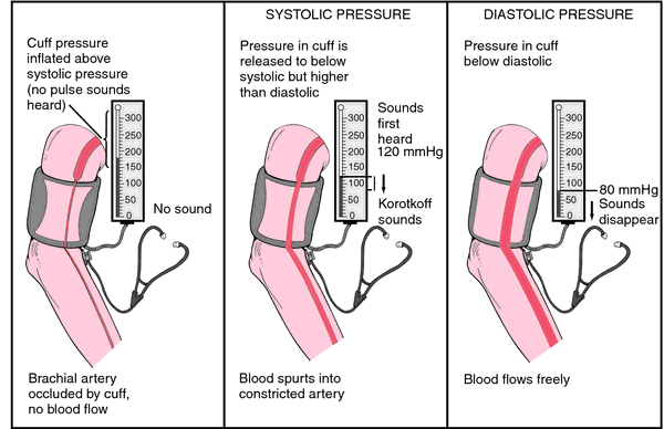 proper steps to take blood pressure Most adults in the uk have blood pressure readings in the range from 120 over 80 (120/80) to 140 over 90 (140/90) if your blood pressure is within this range, you should be taking steps to bring it down or to stop it rising any further.
