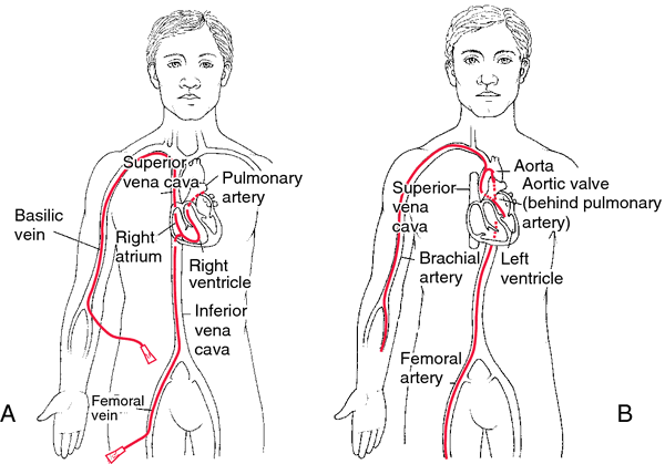 Right and Left Heart Cardiac Catheterization