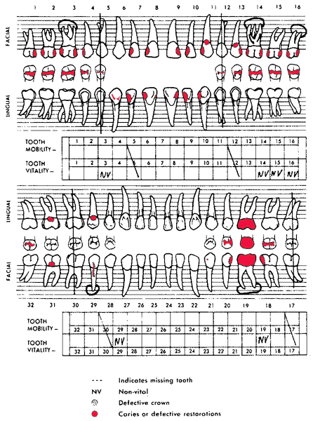 Dental chart | definition of dental chart by Medical dictionary