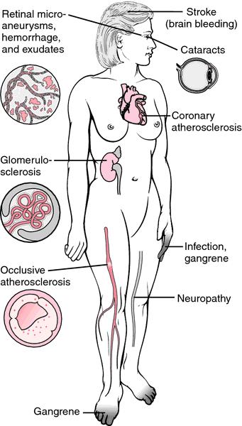 Medical Definition Diabetes Mellitus Type 2