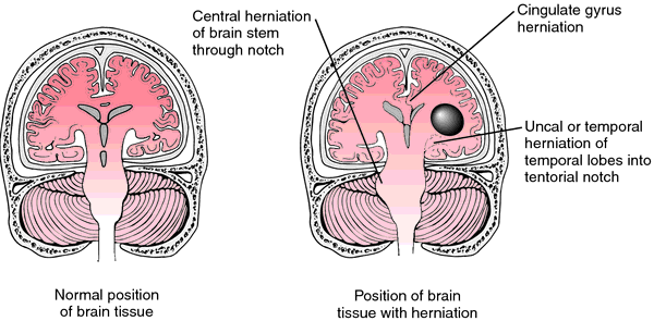 Uncal herniation | definition of uncal herniation by Medical ...