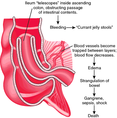Intussusception | definition of intussusception by Medical dictionary