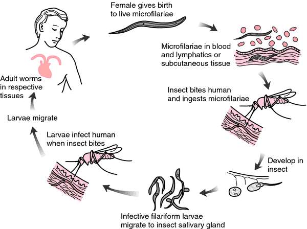 Filarial Worms Life Cycle Microfilaria | ...