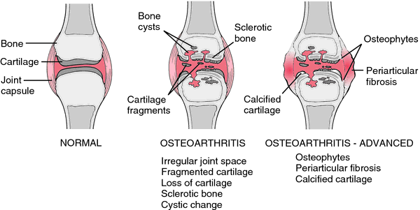 the clinical description of the degenerative disease arthrosis Overview degenerative disc disease is a condition caused by the  these age- related changes can lead to arthritis, disc herniation, or spinal stenosis.