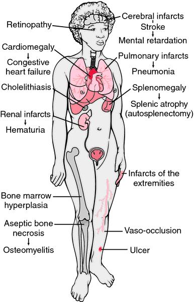 Hemolytic Disease Of The Newborn. of Sickle Cell Disease.