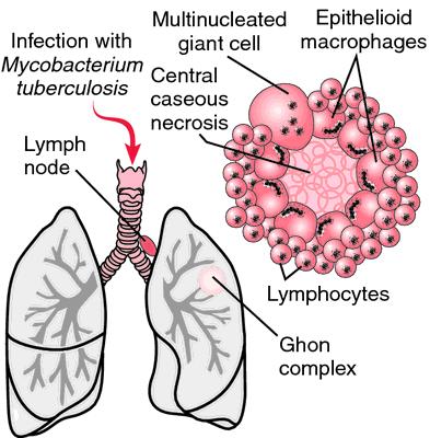Lymph Node Tuberculosis Symptoms