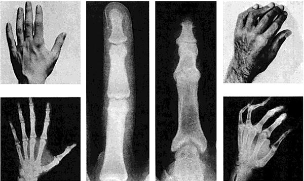 psoriatic arthritis definition