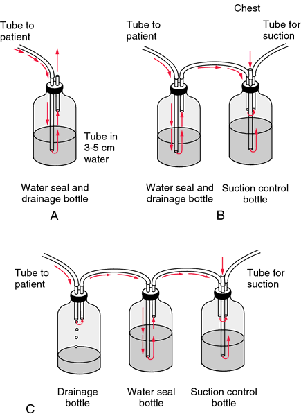Chest Tube Definition Of Chest Tube By Medical Dictionary