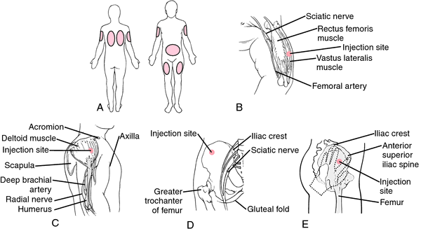 Intravenous injection | definition of intravenous injection by