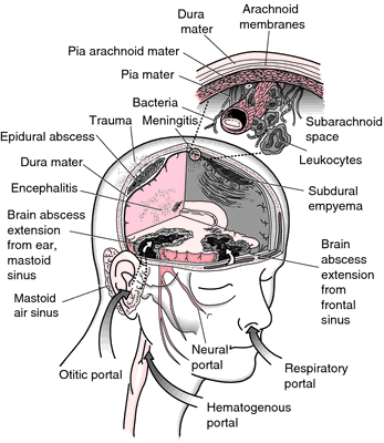 Is meningitis contagious yahoo dating