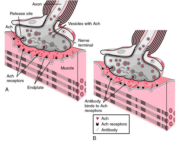 Myastenia gravis | definition of Myastenia gravis by ...