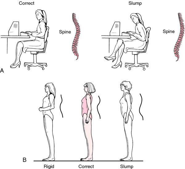 Posture Definition Of Posture By Medical Dictionary