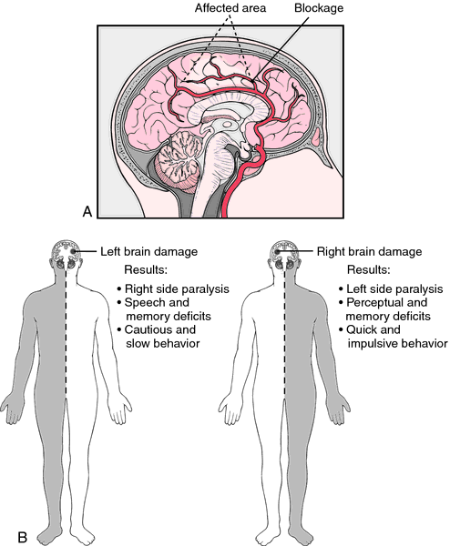 Systems affected stroke body by