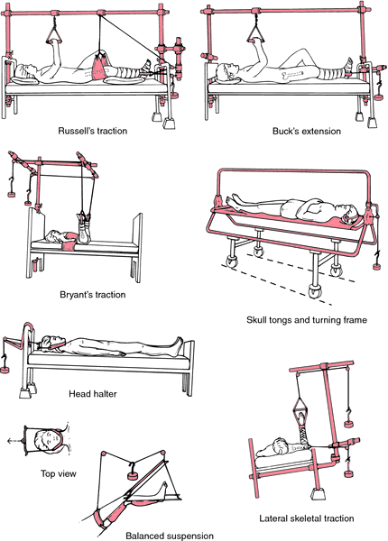 Various types of traction and suspension Bone Traction